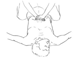 Example of Hemlich Maneuver for lying down patient. Press into  and up against stomach with a sharp thrusting motion.